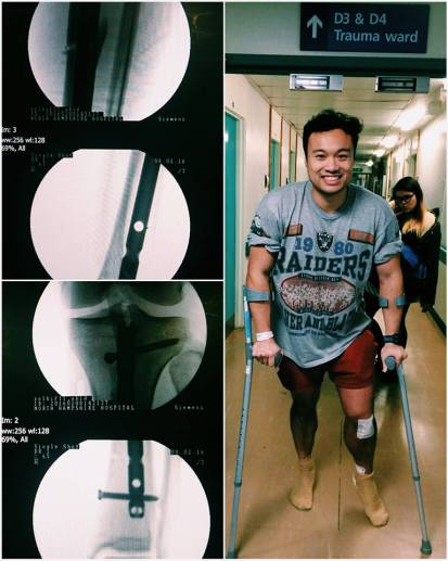 Travel with Broken Leg - Recovery